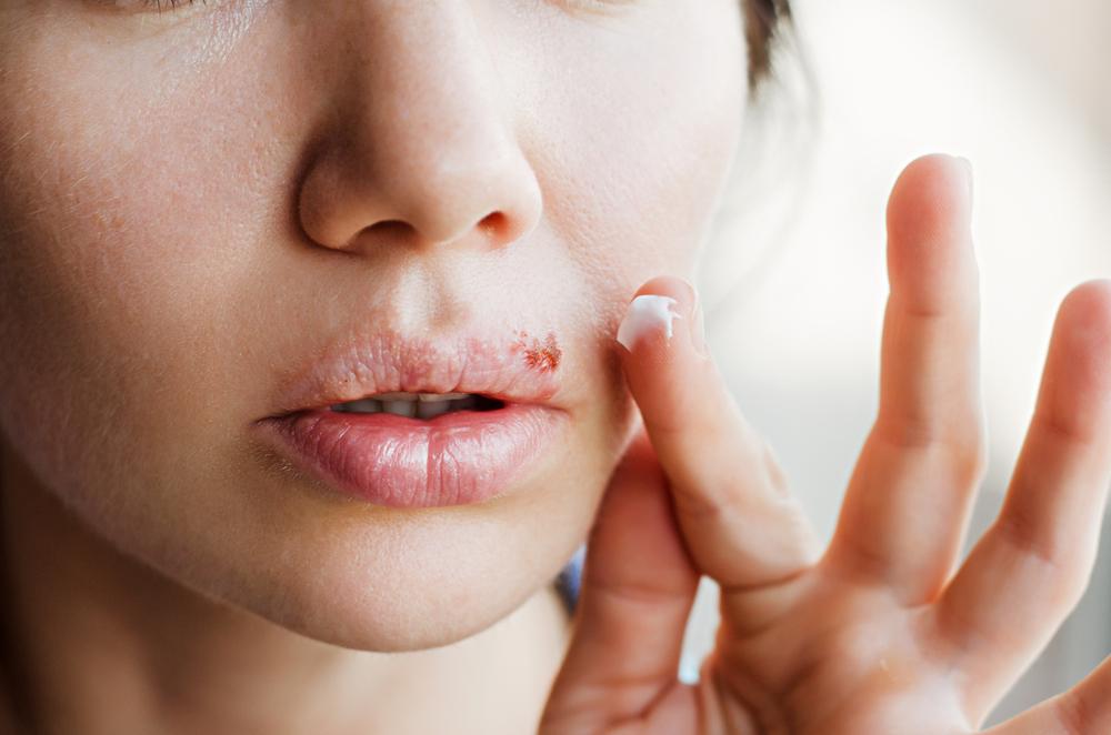 herpesz papillómákkal történő kezelés