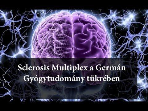 sclerosis multiplexes férgek kezelése)
