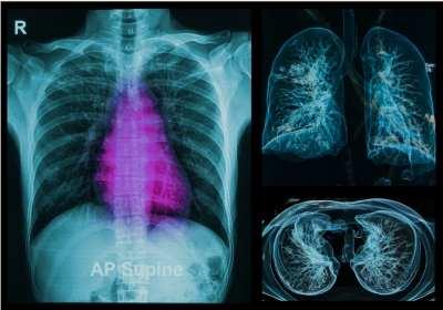 a tüdőben található szarkóma rák