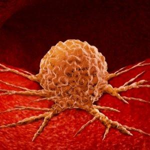 Diéták daganatos betegek számára