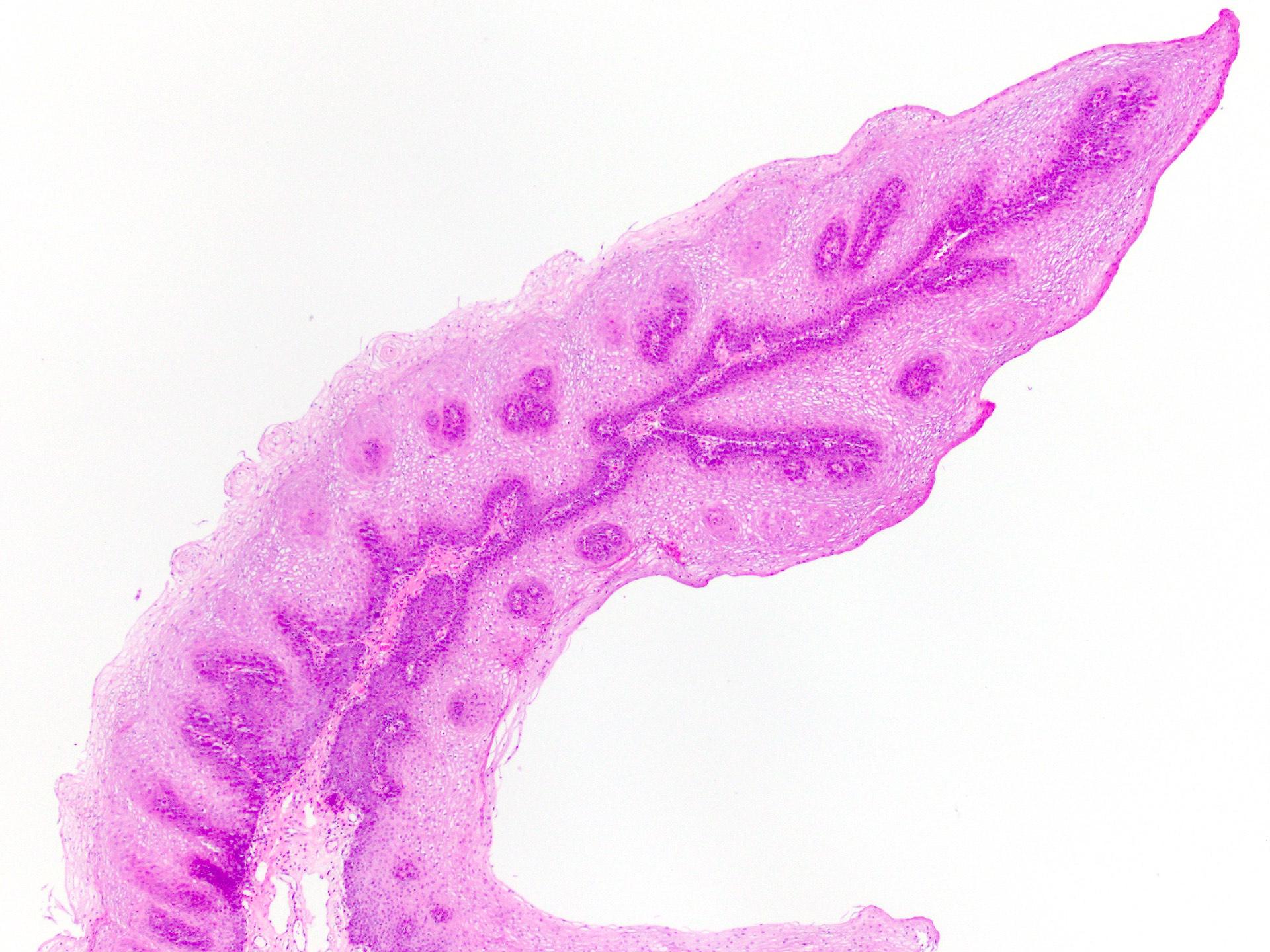 a hólyag patológiájának fordított papilloma