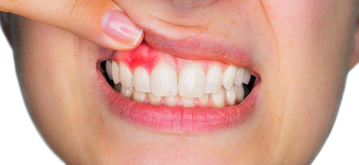 a fogbetegségek mentális okai)