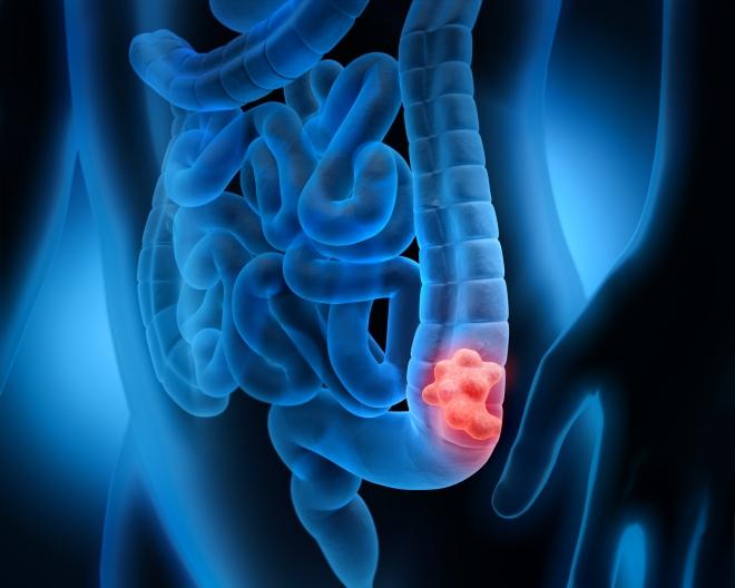 vastagbélrák nccn rickettsia helminthoeca