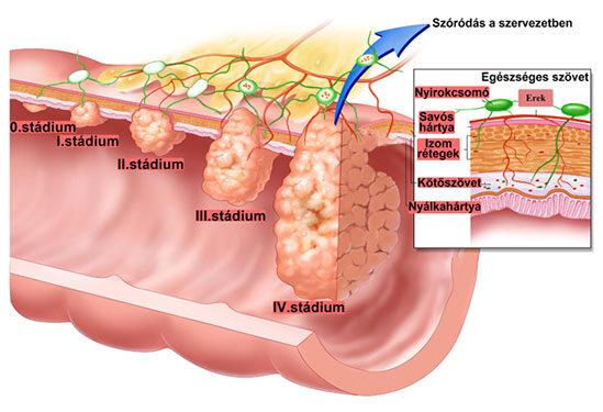 vastagbélrák tünetei nőknél