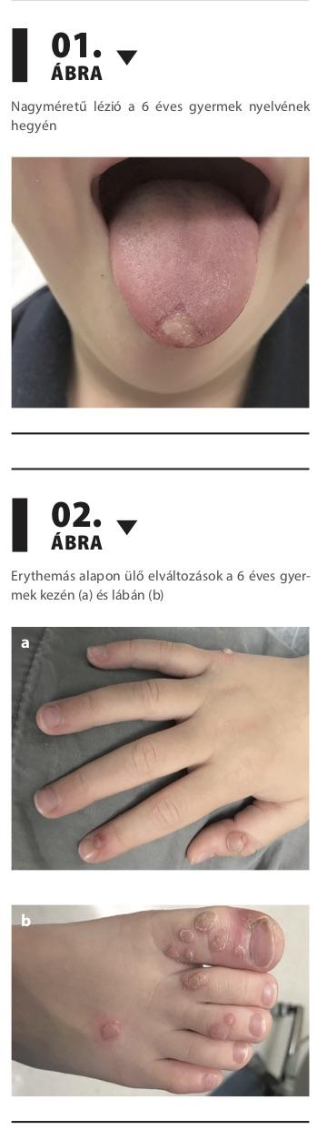 hpv lézió vérzés