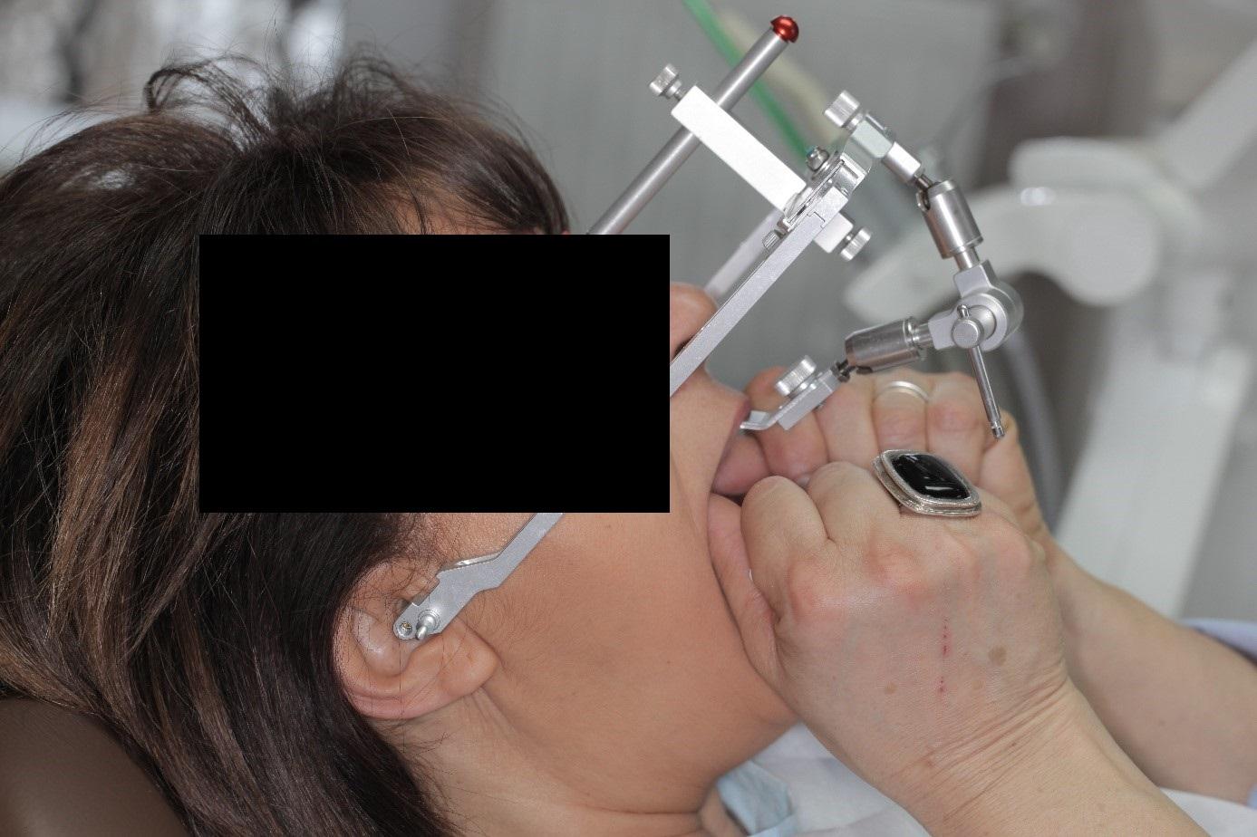 gnat kezelés)