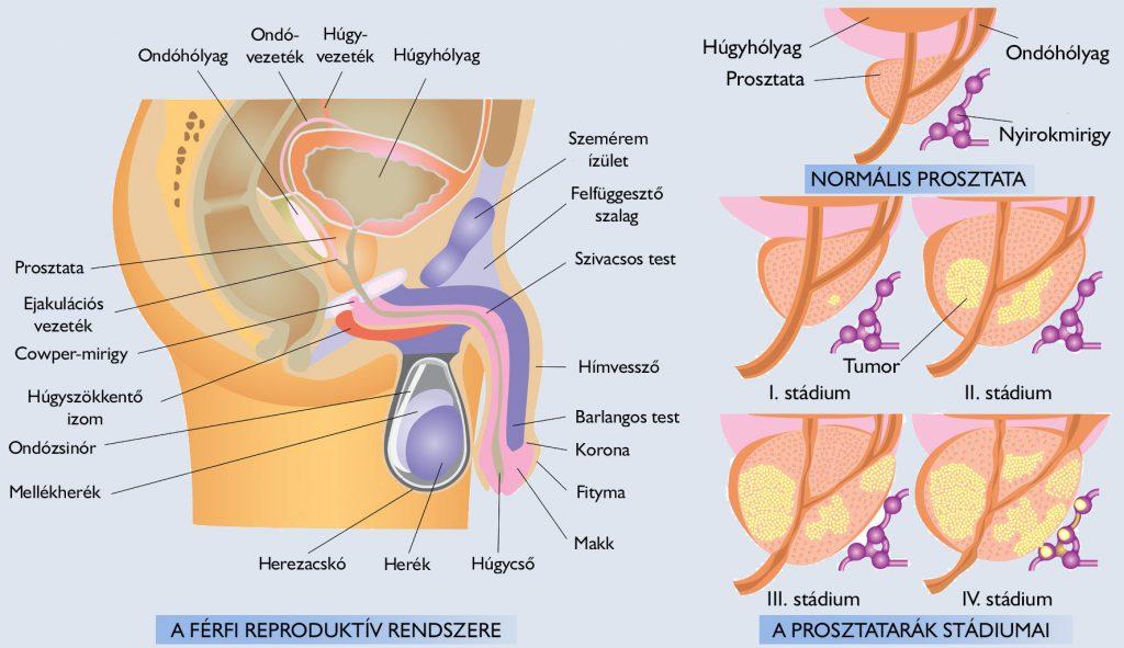 Férfi húgycső rák tünetei