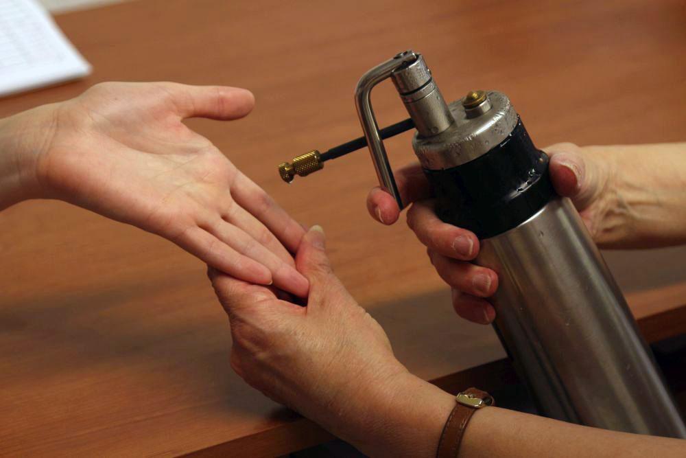 condyloma eltávolító kezelés a bél méregtelenítése szükséges