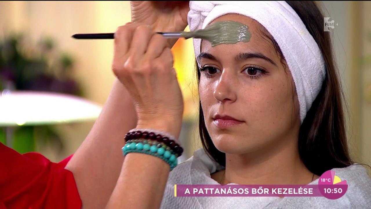 féreg pattanások kezelése hogyan lehet megszabadulni a szem körüli papillómáktól