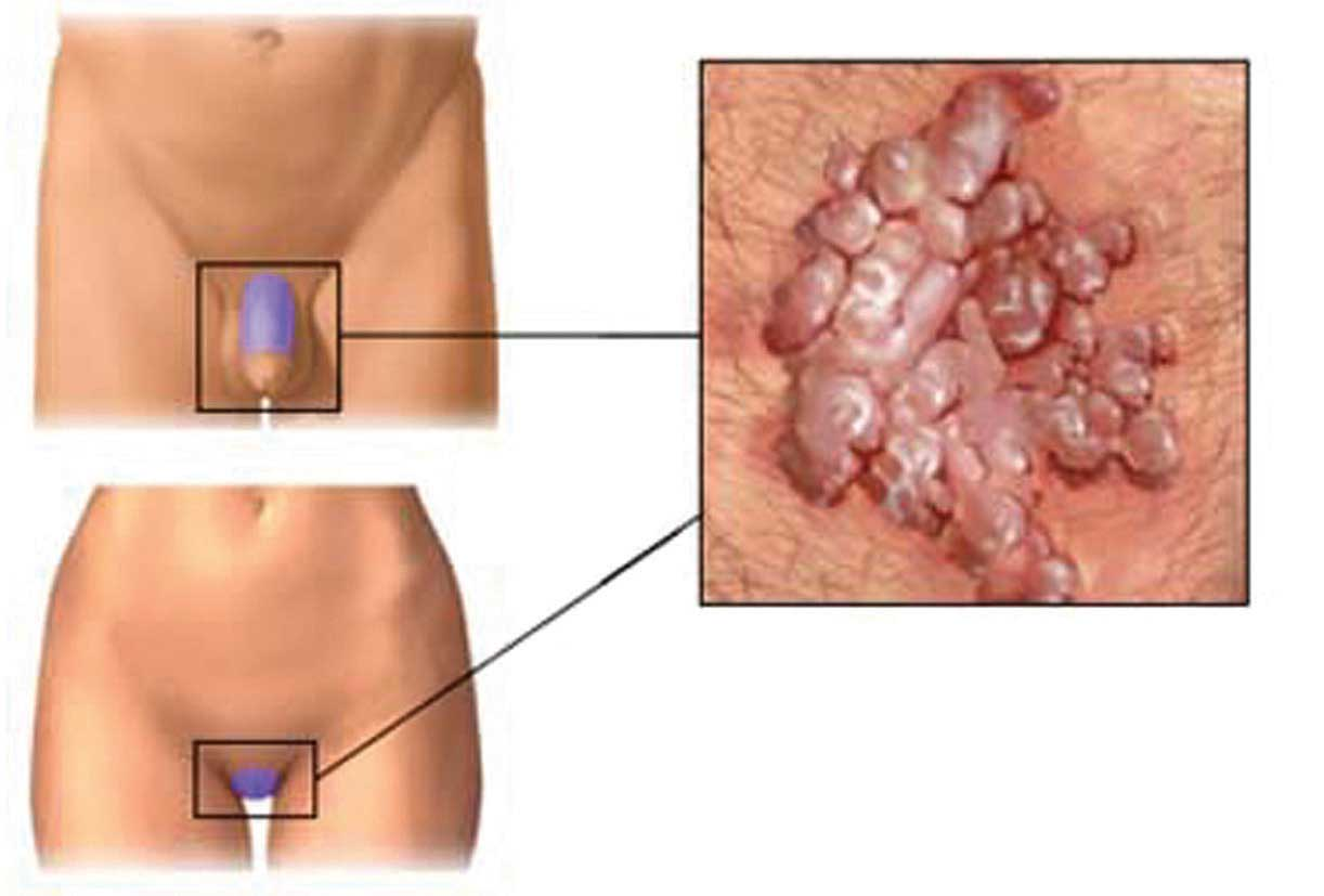 Giardia és féreg kezelés felszínes papilloma hólyag