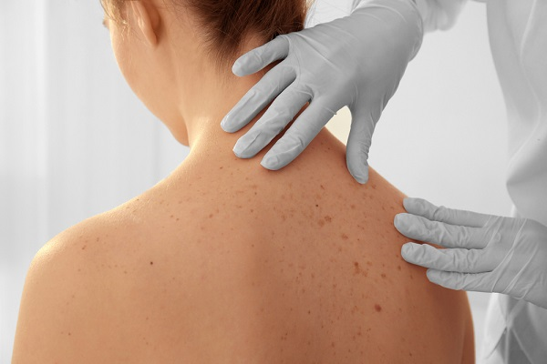 a bőrrák átterjed