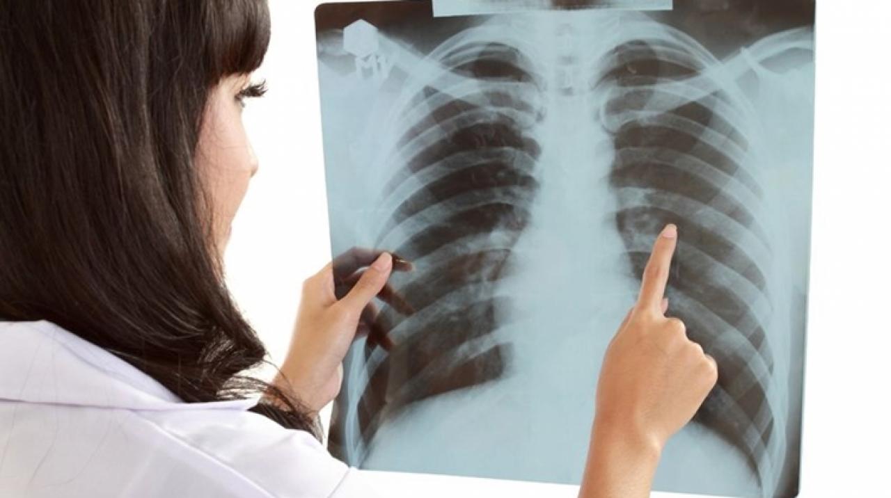 Mi a tüdőrák?