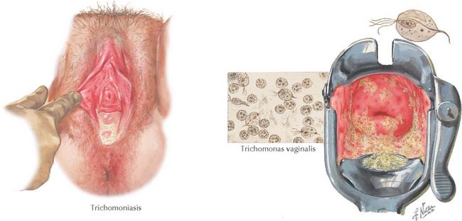 trichomoniasis condyloma