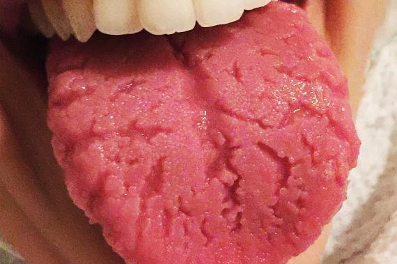 vallate papillae nyelv kezelése)