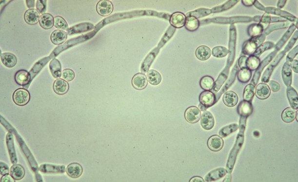 A gombás intimfertőzés fertőzés tünetei