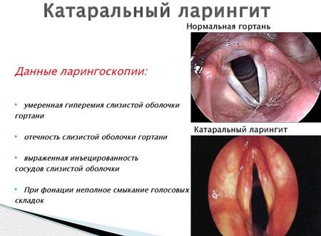 orrszeptum papilloma papilloma több okból is