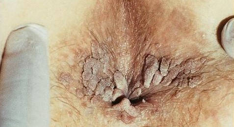 férfi genitális papilloma tünetei papilloma lingua nád