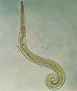 enterobius vermicularis a pinworm)