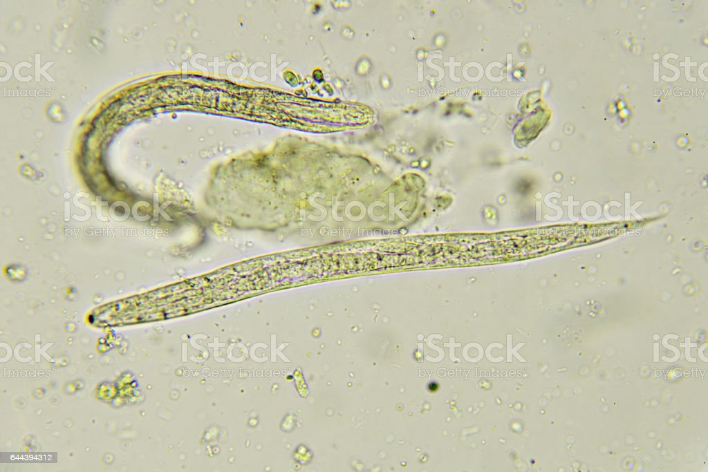 parazita gyermek pinwormok