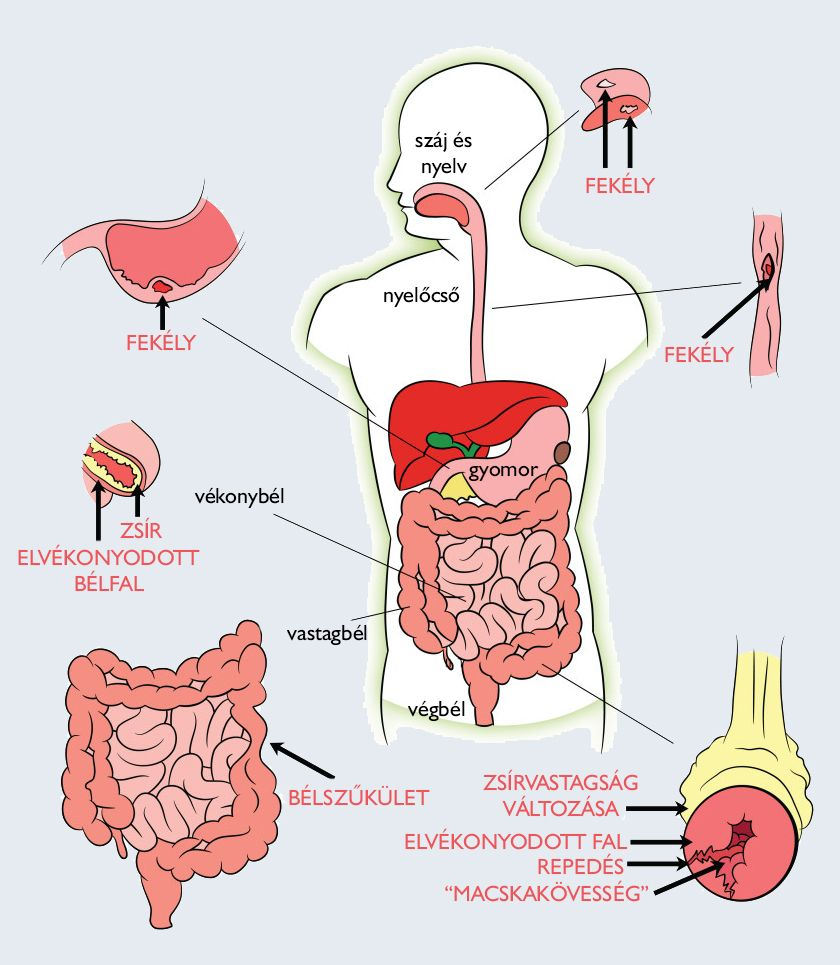férgek típusai az emberi test tablettáiban