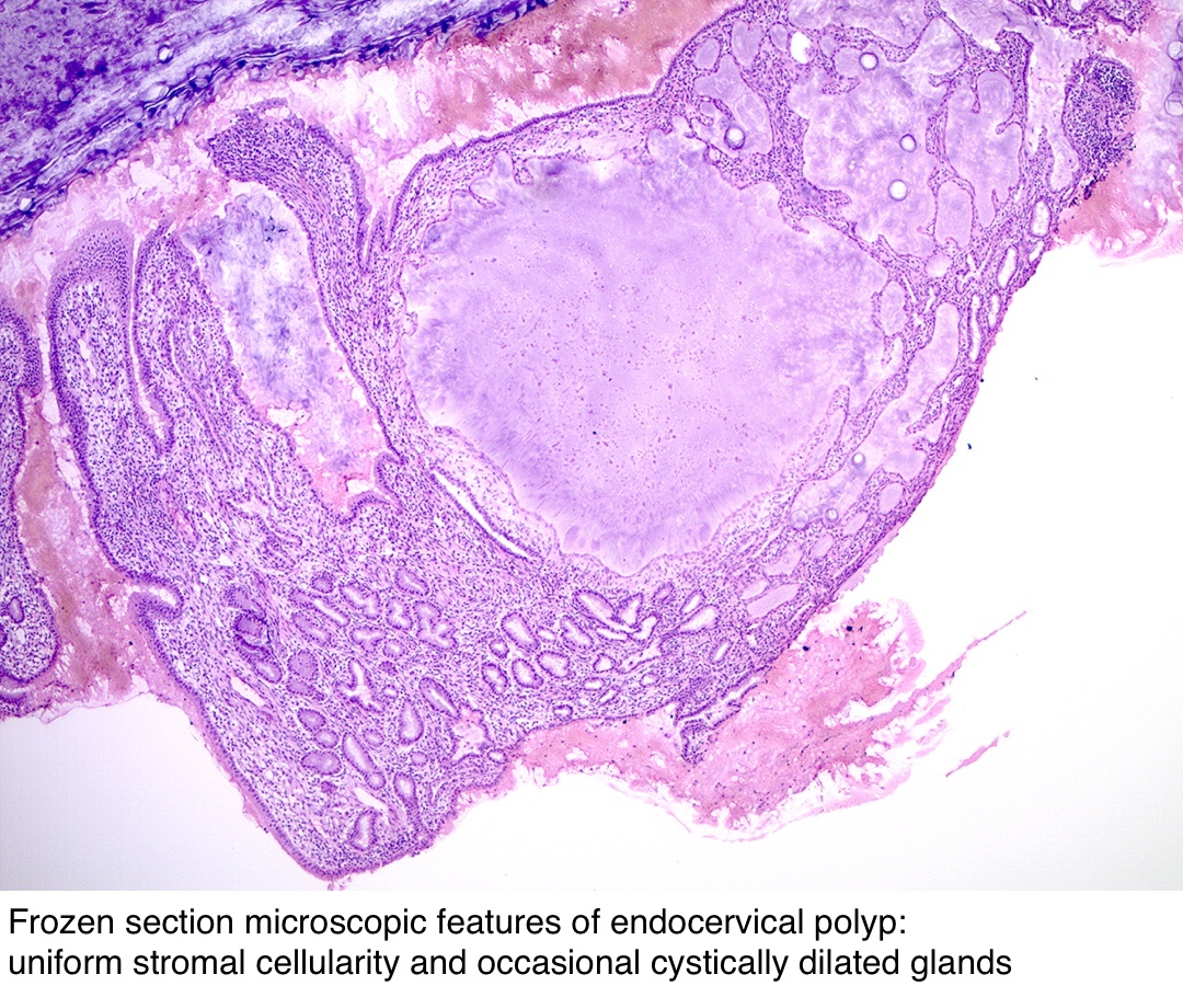 polip condyloma