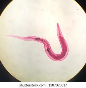 az enterobius vermicularis életciklusa diagrammal