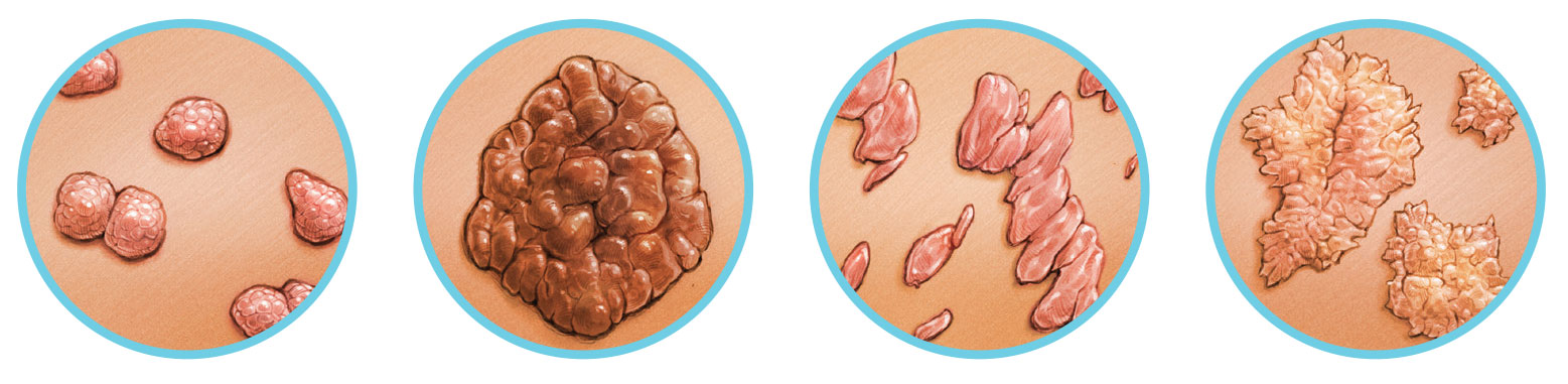 orr papilloma terhesség
