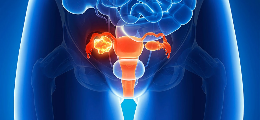 Petefészekrák oka, tünete, kezelése - Nőgyógyászati Központ