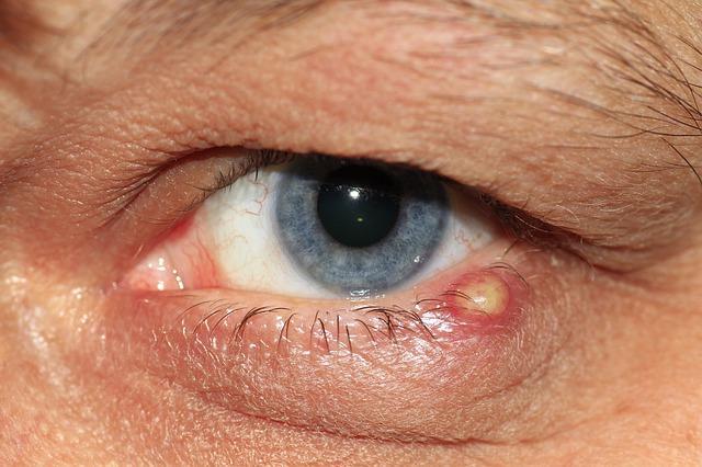 orvosság a szemhéjon lévő papillómák ellen hpv kezelés vitaminok