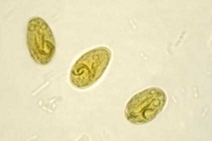 Giardiasis quistes tratamiento Giardia quistes tratamiento