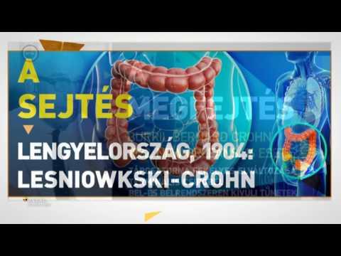 Helmintikus terápia Crohn kór, Posts navigation