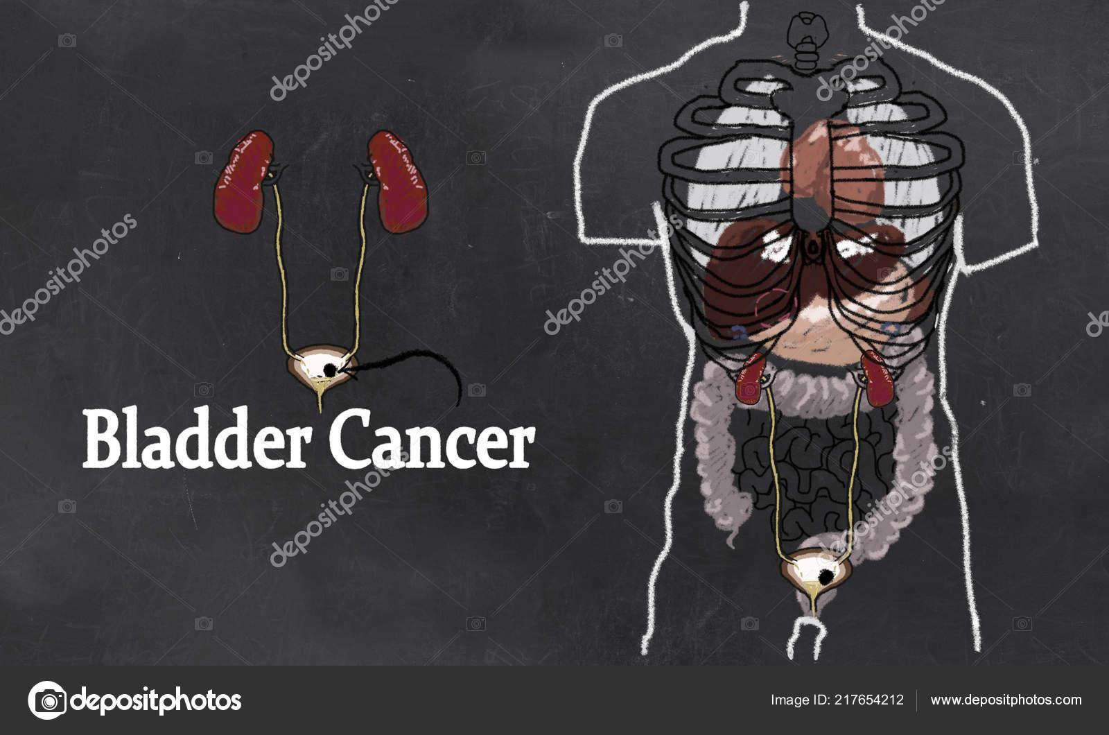 endometrium rákos csípőfájdalom