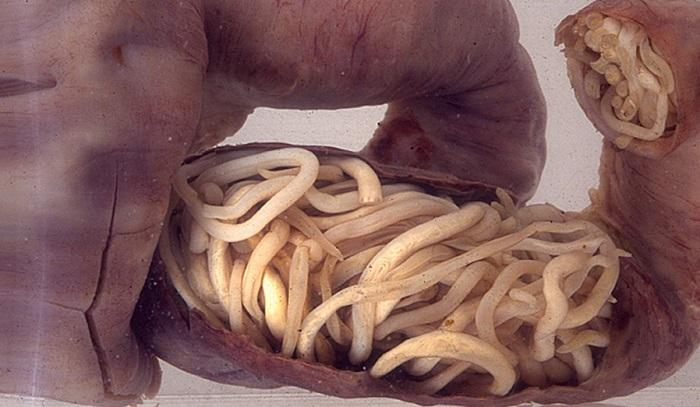 crijevni paraziták kódja ljudi lijecenje