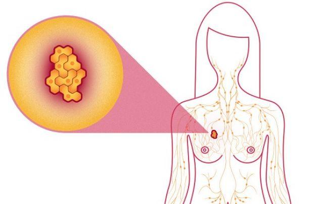 áttétes rák nyirokcsomó nyak