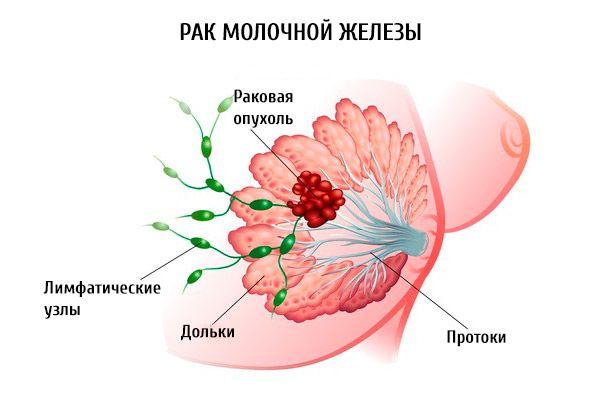hármas negatív rák