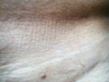 Bőrgyógyászat: Vírusos szemölcsök (a Verrucae kivételével). Közös szemölcsök.