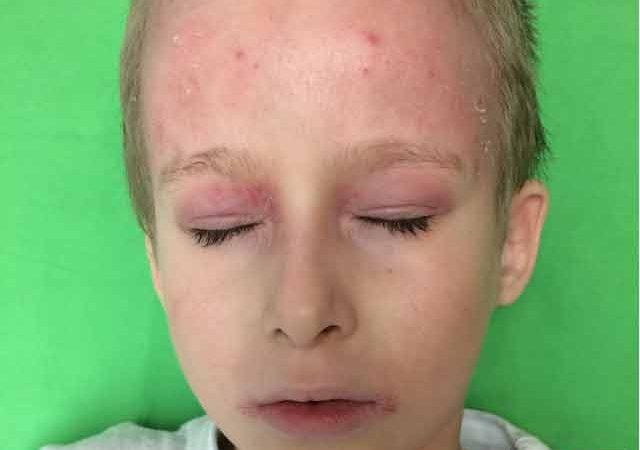 Gyermekkori ekcéma - Gyermekkori atópiás dermatitis
