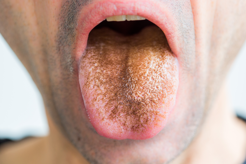 szemölcsök a nyelv alatt papilloma légzőszervi papillomatosis