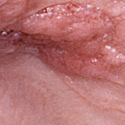 papillomavírus jelentése arabul)