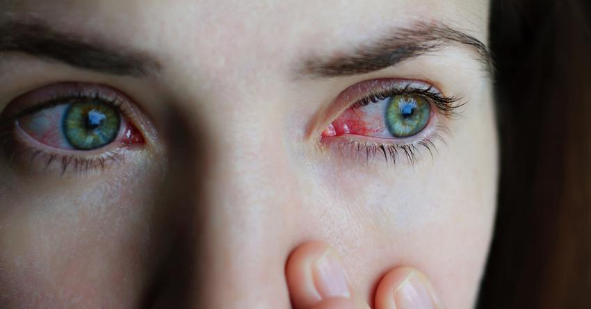hogyan cauterizálhatjuk a szem papillómáját)