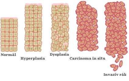 lamblia paraziták tünetei