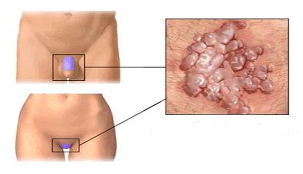 Papilloma vírus tünetei