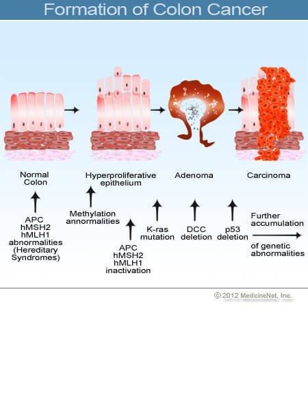 a peritoneális rák prognózisának túlélési aránya)
