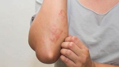 ótvar és allergia)
