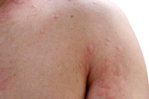 A bőrrák típusai