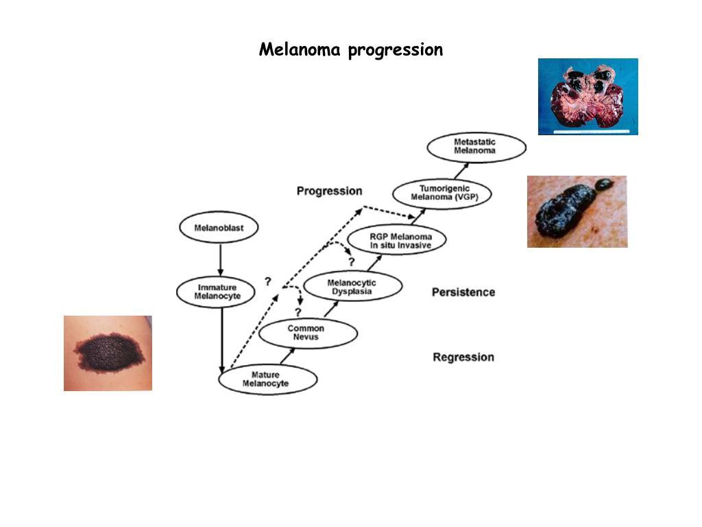 Milyen stádiumokba sorolják az emlődaganatokat?