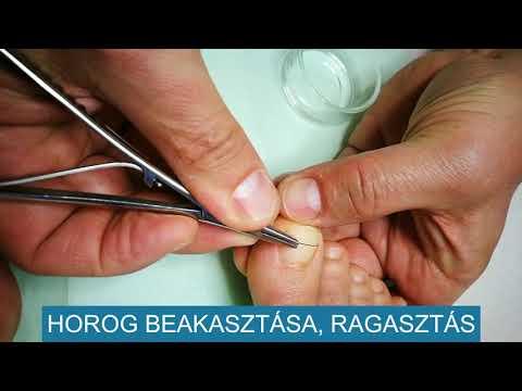 körömféreg-műtét)