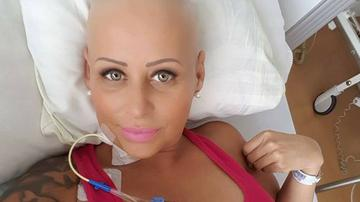 Az egyik legagresszívebb ráktípusra figyelmeztetnek a dermatológusok