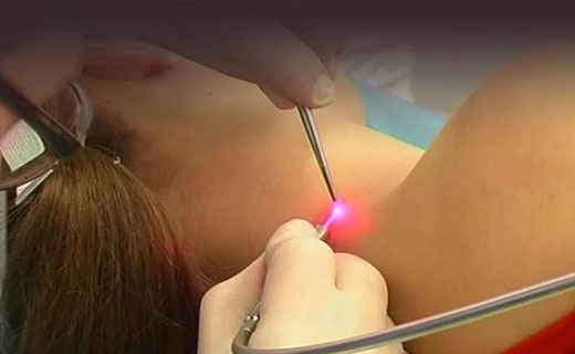 a genitális szemölcsök elektrokoagulációja nőknél