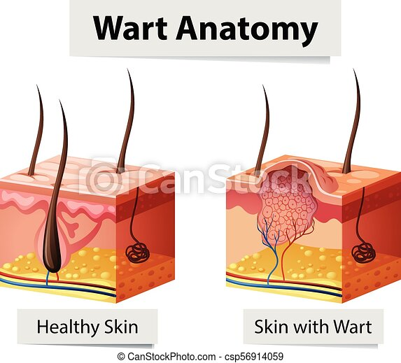 emberi bőr papillomatosis